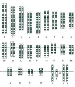 Representació gràfica del cariotip humà normal.